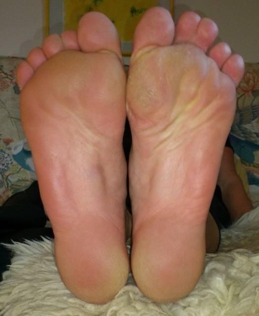 Meine Füße nach sechs Monaten