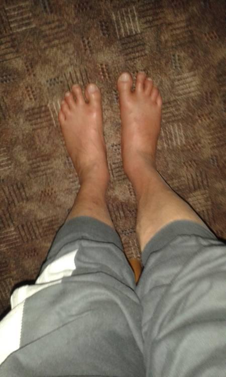 Tobis geschwollene Füße