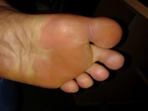 linke Fußsohle nach Erfierung