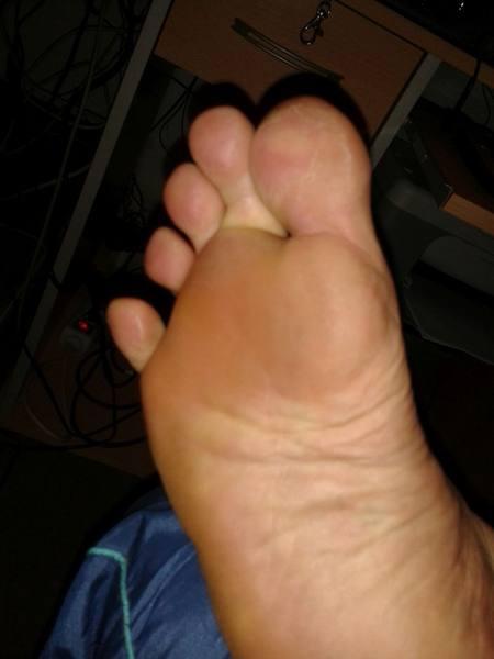 rechte Fußsohle nach Erfrierung