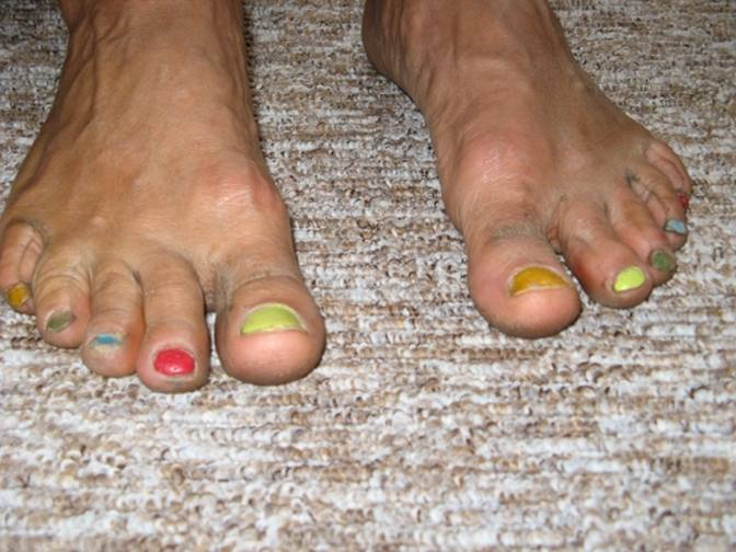 Bunte Fußnägel