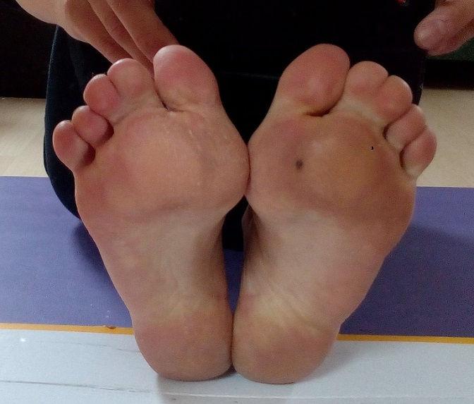 Eva´s Fußsohlen nach Zwei Jahre barfuß laufen