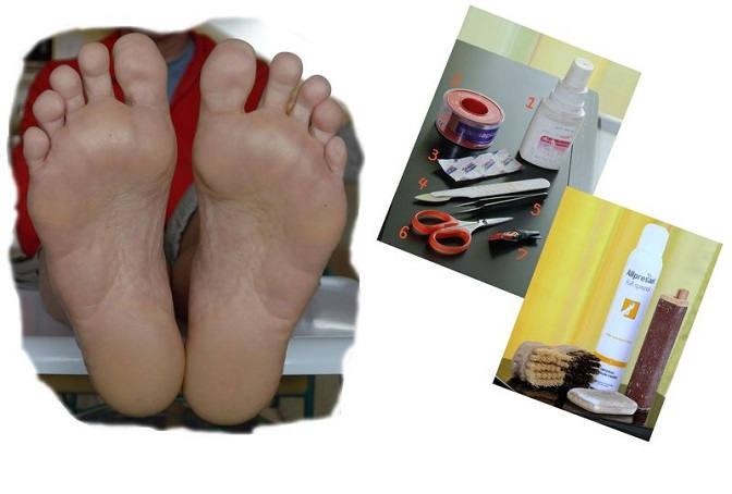 Wolfgang –  Meine Fußpflege zu Hause und unterwegs