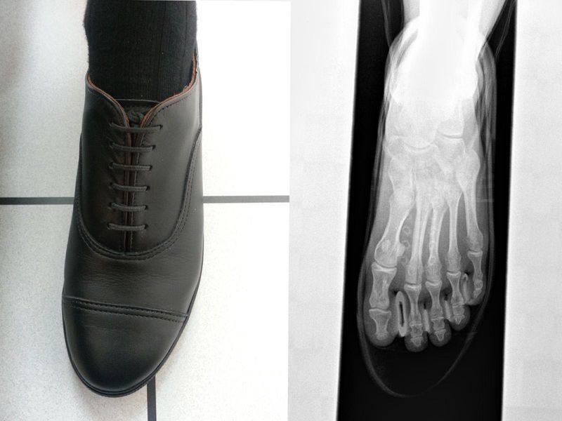 Röntgenbild Fuß im Schuh ,von oben betrachtet