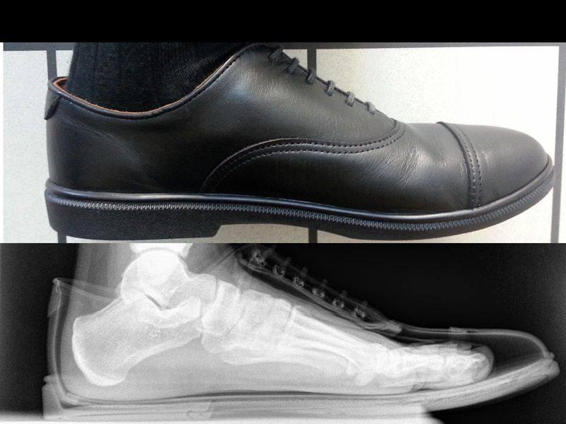 Röntgenbild vom Fuß im Schuh