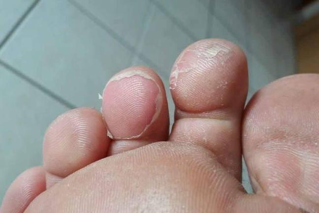 Erfrierung an den Zehen mit abgelöster Haut